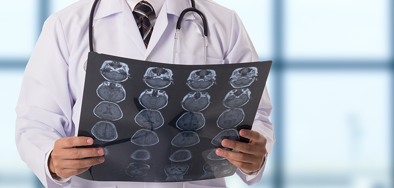 Conditions Treated By An Expert Neurologist